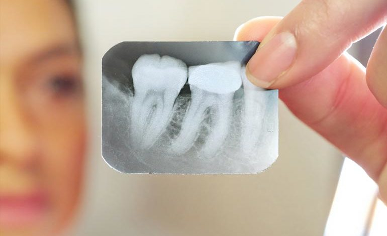 x-ray of teeth for root canal